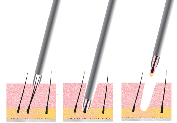 FUE - Follicular Unit Extraction